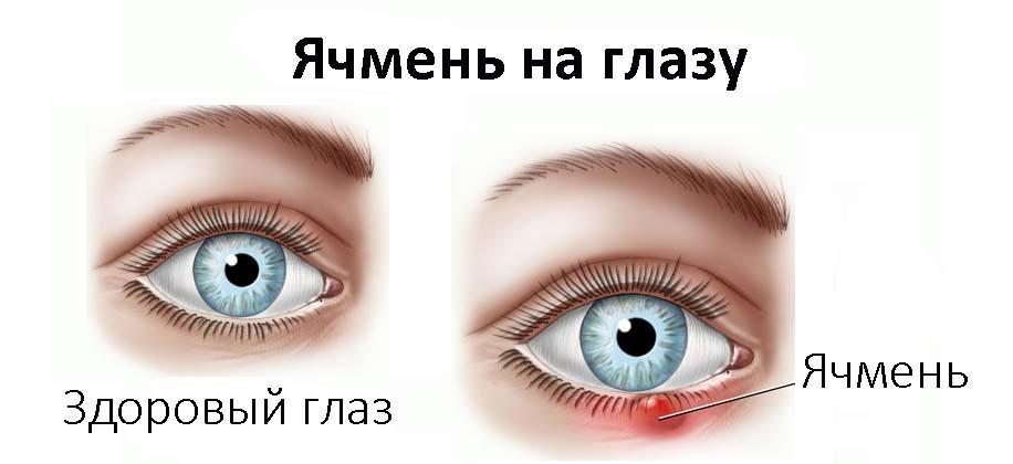 Советы чем лечить ячмень на глазу